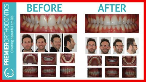 Best Invisalign South East London Review Before and After