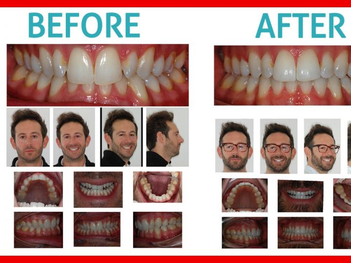 Ewan's Invisalign Before and After Review [VIDEO]