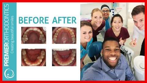 Best Orthodontist South East London Reviews Damon Braces