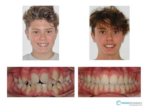 Best Private Damon Braces Orthodontist Bromley Kent Review