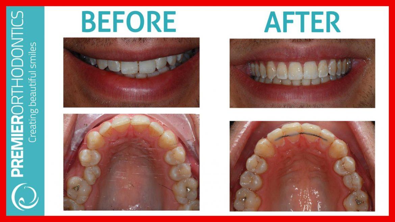 Damon Braces Orthodontist Reviews Near Me - Premier Orthodontics Bromley Kent
