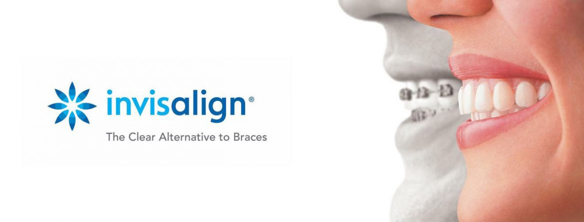 Invisalign Offers London