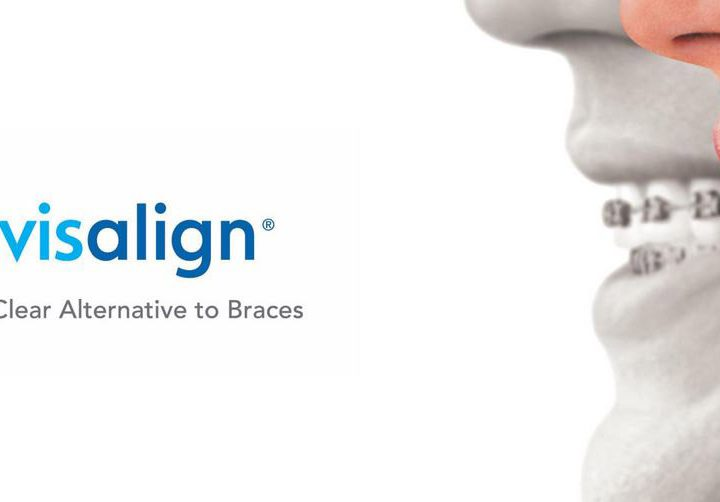A Premier Invisalign Offer!
