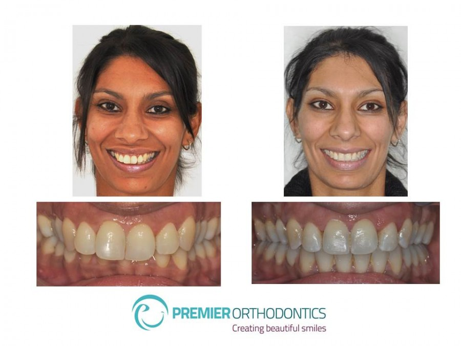 Dentistry For Kids - General Dentist - Kennewick