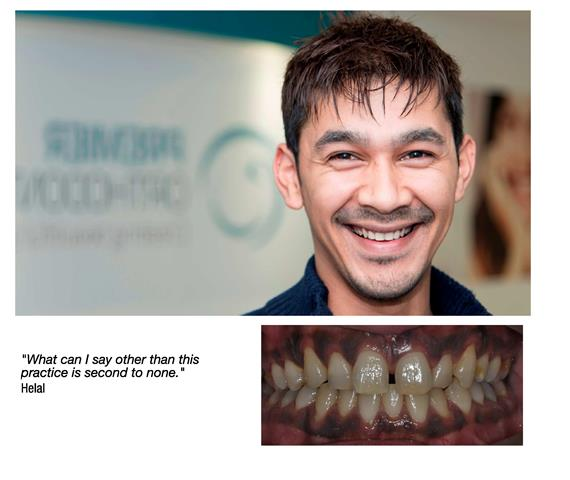 Orthodontists in Hayes and Bromley