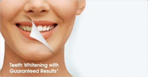 Teeth Whitening Bromley