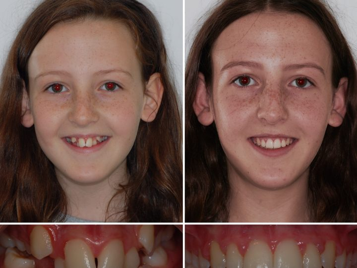 Get your braces fitted THIS summer!