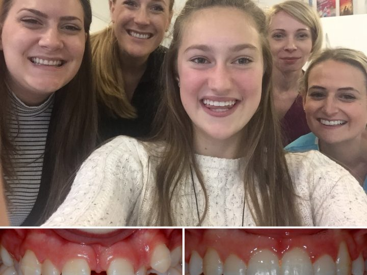 Braces Special Offer : Under 18's Promotion – Save £749*