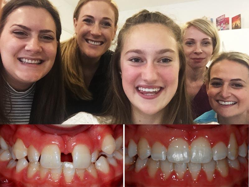 Orthodontist Near Bexley Kent