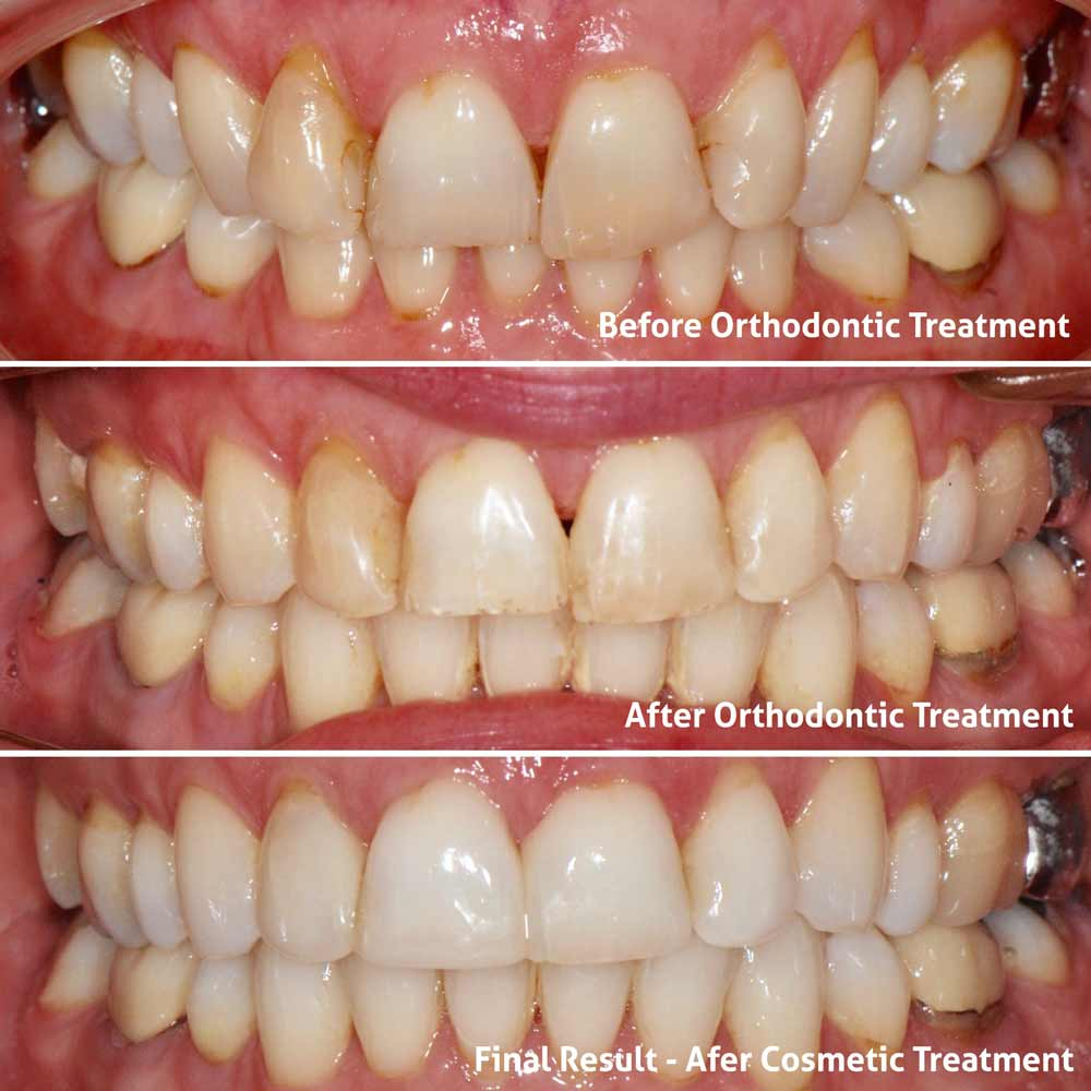 Damon Braces Before and After by Bromley Orthodontist Patient Review Helen