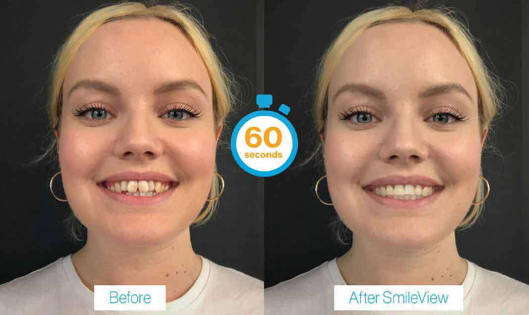 SmileView Smile & Straight Teeth Simulator Tool